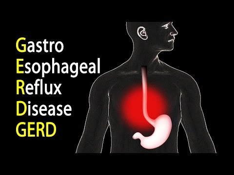 GERD - Gastroesophageal Reflux Disease or Gastric Reflux, Animation.