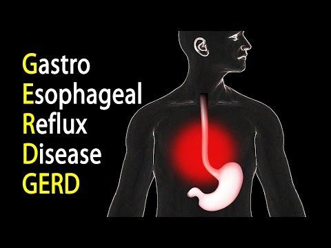GERD Gastroesophageal Reflux Disease or Gastric Reflux, Animation.