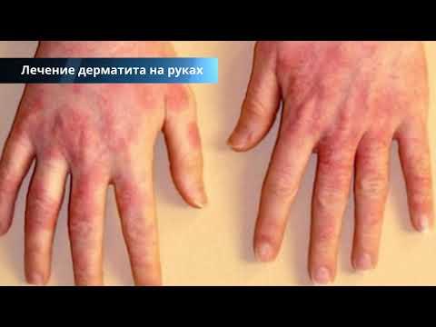 Дерматит на руках - причины и лечение, фото начальной стадии, симптомы, народные средства лечения