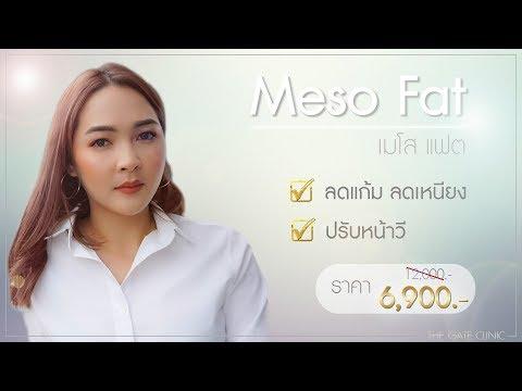 แก้มเยอะ เหนียงเยอะ จัดการกด้วย เมโส แฟต (Meso Fat) ที่ เดอะ เกท คลินิก | The Gate Clinic Pattaya