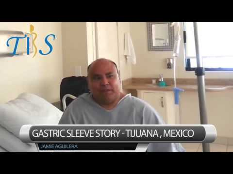 Gastric Sleeve in Tijuana - One Day Post-op