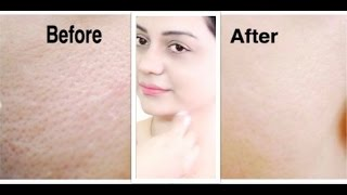 चमत्कारी Skin Toner for Oily Skin, Open Pores, Large Pores & Pimples