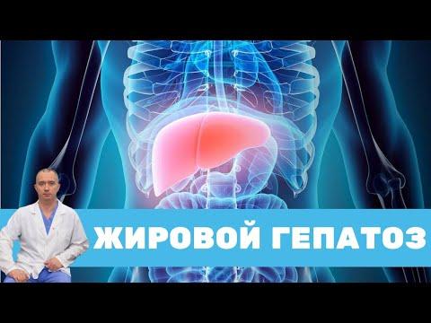 Жировой гепатоз. Как лечить?