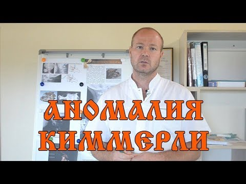 Аномалия Киммерли или задний мостик атланта - виды аномалии, диагностика, решение
