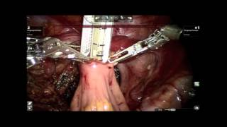 ROBOTIC SINGLE DOCKED, FULLY INTRACORPOREAL TOTAL PROCTOCOLECTOMY ILEAL POUCH - ANAL ANASTOMOSIS