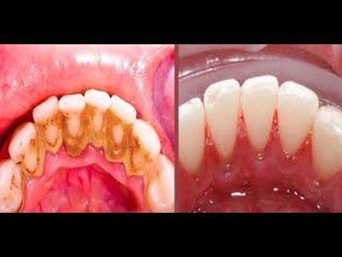 Como Clarear Os Dentes Em Casa Clareador Dental Caseiro Youtube