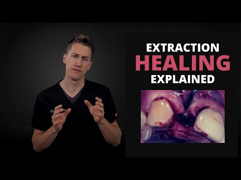 What Does Normal Healing Look Like After A Tooth Extraction | OnlineExodontia.com