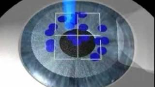 Allegretto Wave Laser   Amarillo Texas LASIK