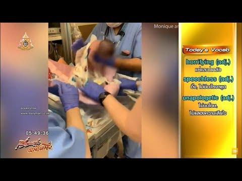 พ่อแม่ร้องเรียน หมอสหรัฐฯเผลอทำทารกแรกเกิด หลุดมือในห้องคลอด
