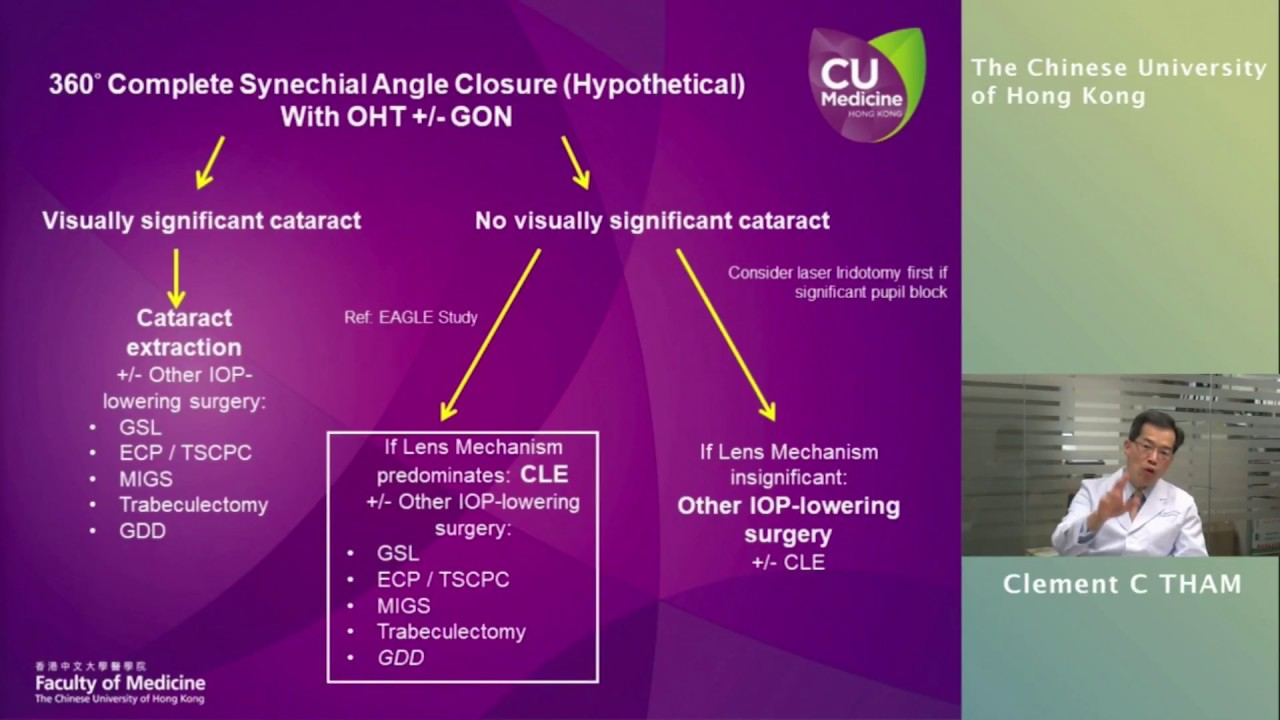 Angle closure management a logical approach based on angle closure type and mechanisms