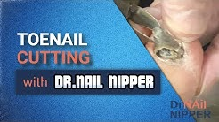 Toenail Cutting with Dr Nail Nipper on Instagram and IGTV?  (2020)