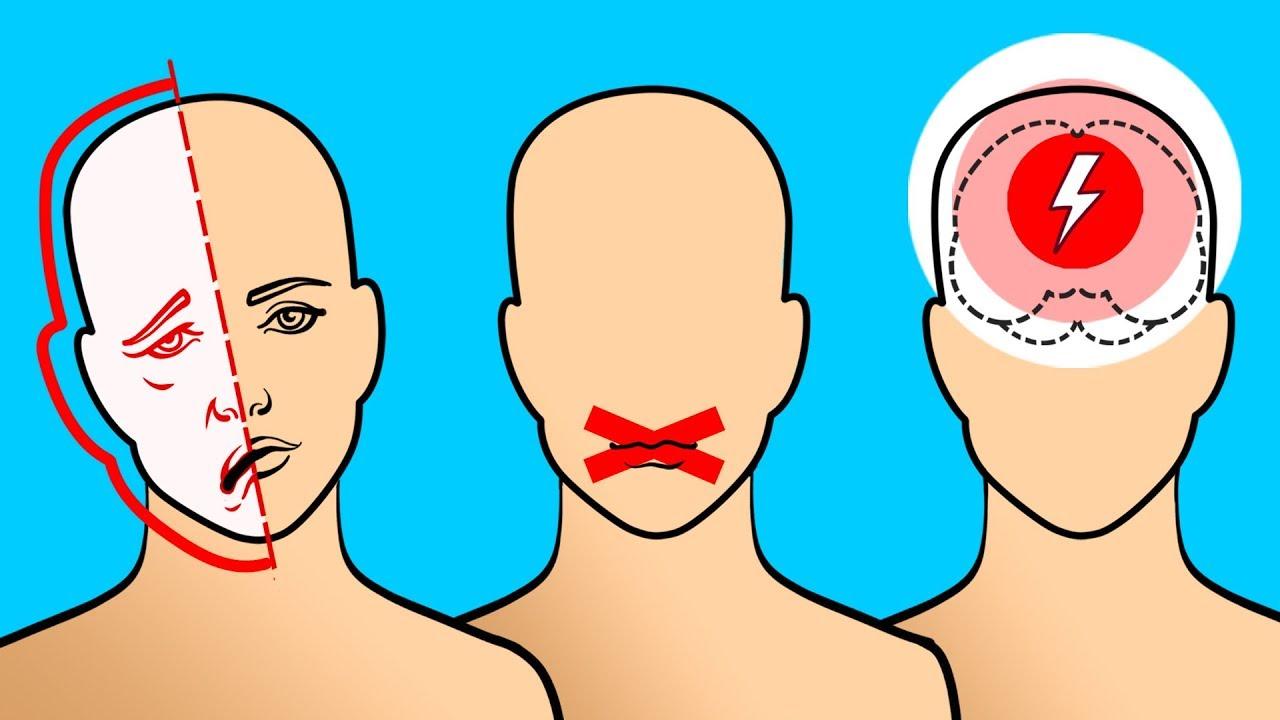 que es un derrame cerebral y sus sintomas