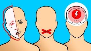 Antes dias de sintomas un derrame cerebral
