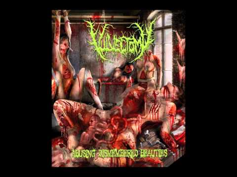 Vulvectomy - Involuntary Manorexia