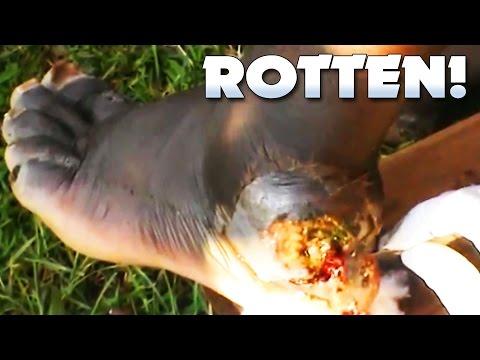 Samuel's Rotten Jigger Foot!