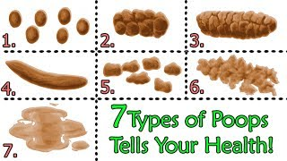 Surprise About Your Poops? Here Are 7 Types Of Poops Tells About Your Health!