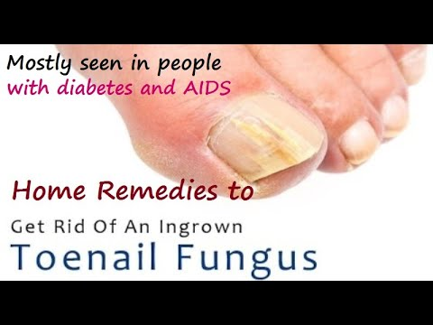 Home Remedies for Ingrown Toenail Fungus – Top 10 Natural Home ...