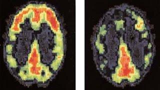 CHEMTRAILS - Amygdala POLICE Prefrontal cortex