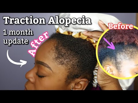 HOW I GREW MY EDGES IN 1 MONTH - Traction Alopecia