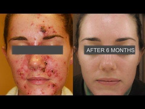 Learn How To Treat  Severe Acne - by Dr. Franziska Ringpfeil, Board Certified Dermatologist,
