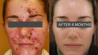 Learn How To Treat  Severe Acne - by Dr. Franziska Ringpfeil, Board Certified Dermatologist,