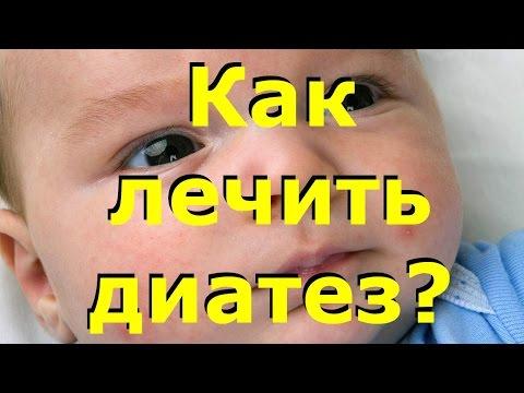 Почему у ребенка красные щечки
