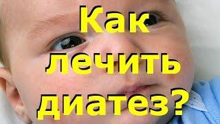 видео Сыпь у детей (детская сыпь) - Доктор Комаровский
