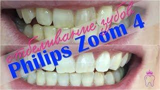 Отбеливание зубов Philips Zoom 4 в Смоленске | Стоматолог Ирина Тютюнник