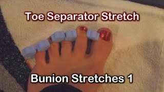 Bunion Treatment: Stretches for Bunion Pain 1 Toe Separator Stretch