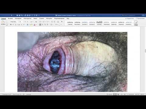 Случай № 20 Травма головки полового члена