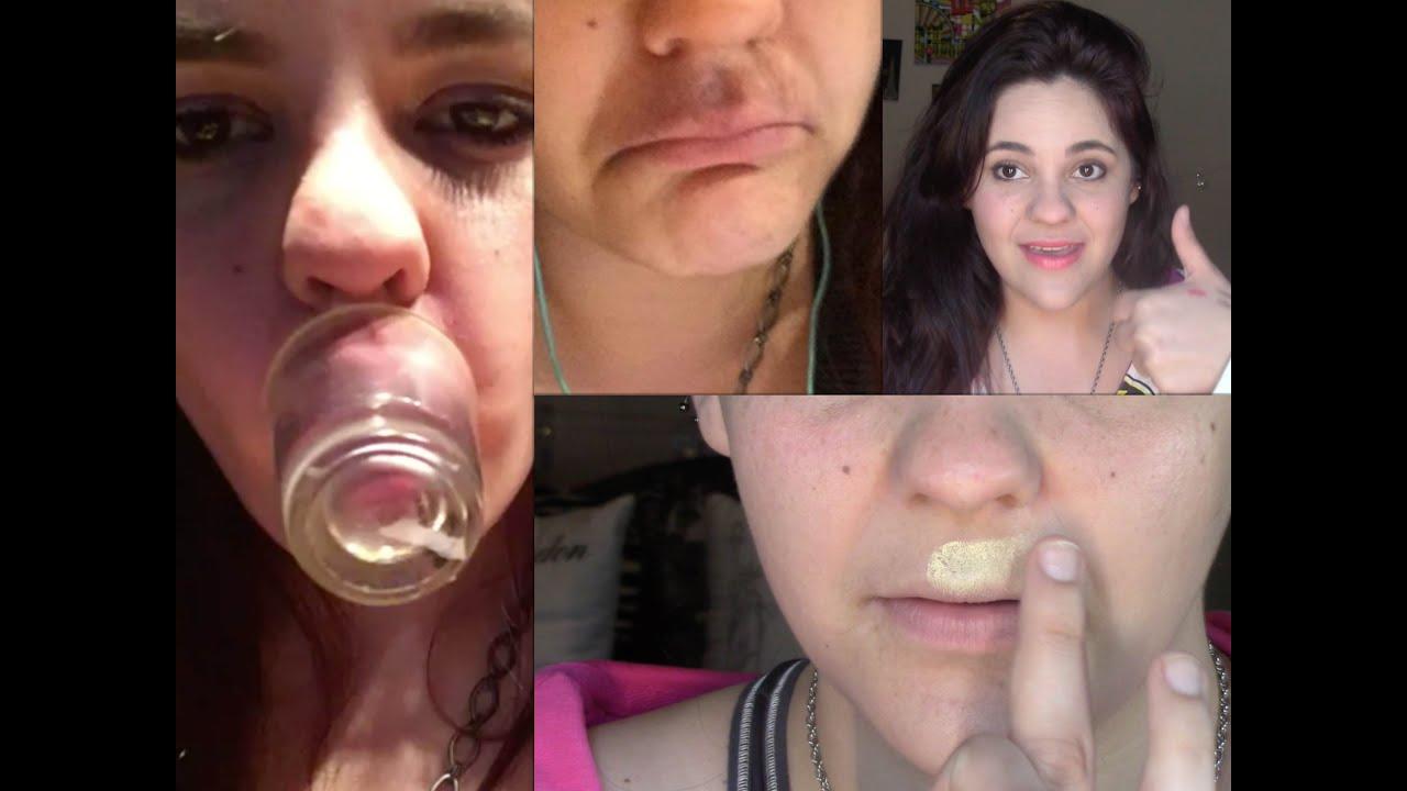 como curar hematomas en la boca