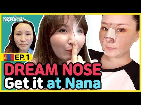 [SUB] I Got a nose job | rhinoplasty experience in Korea | NANA Plastic Surgery Hospital