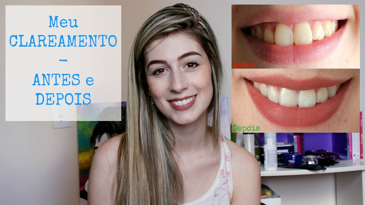 Meu Clareamento Dental Antes E Depois Youtube
