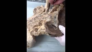 Анатомия дыхательной системы 1