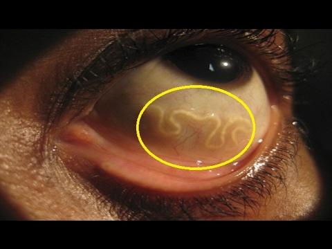 Dog Watch Eye