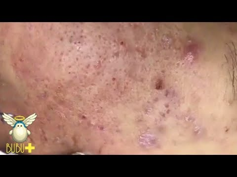 Cystic Acne And Pimples Extraction On Face Acne Treatment 92523!