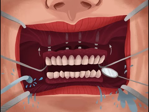 NATIONAL ORAL HEALTH - Samoohyapadam