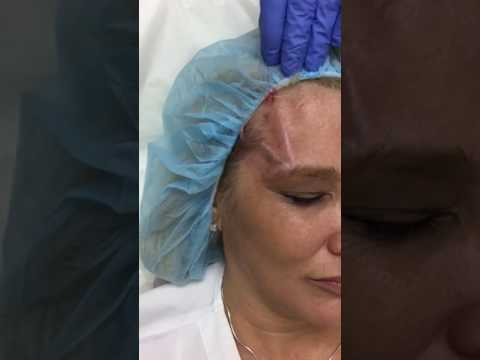 Non Invasive Brow Lift - Done with PDO Threads  - YouTube