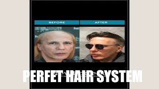 THE 5 FACTORS THAT MAKE 1 PERFECT HAIR SYSTEM!