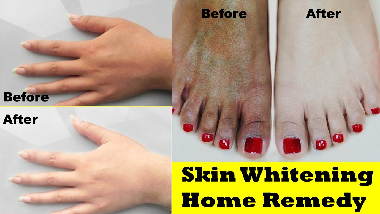 Whitening treatment as is indicated by comparison to the whitening - Skin Whitening Home Remedy 100 Effective For Dark Skin Skin Whitening Treatment For Hands And Legs