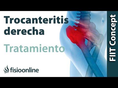 Trocanteritis o bursitis trocanterea. Causas y tratamiento natural ...