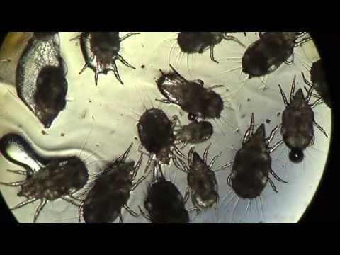 Мёд под Микроскопом: Опыт 3: х100 Клещи Мучные Acarus Siro