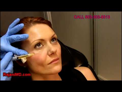 how to get rid of under eye wrinkles without surgery