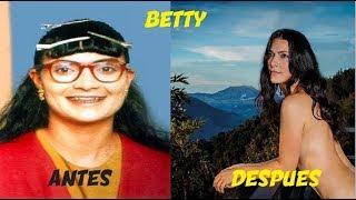 Betty la Fea - ANTES Y DESPUES 2017