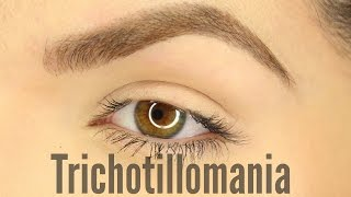 Trichotillomania (PT.1)