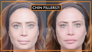 Dermal Fillers In The Chin