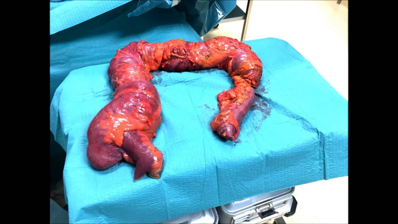 Subtotal Colectomy For Obstructing Splenic Flexure Ca