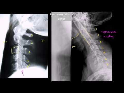 Как выглядит вывих на рентгеновском снимке