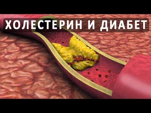 Повышенный холестерин и сахарный диабет