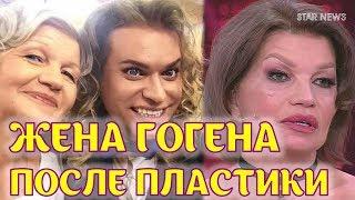 Жена Гогена Солнцева после пластики! Екатерину Терешкович не узнать!